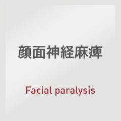 顔面神経麻痺:Facial paralysis