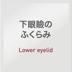 下眼瞼のふくらみ:Lower eyelid